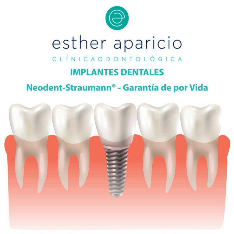 implantes sevilla clinica dental esther aparicio