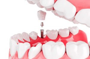 mejores implantes sevilla