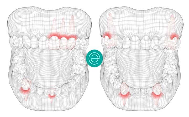odontologia preventiva esther aparicio sevilla
