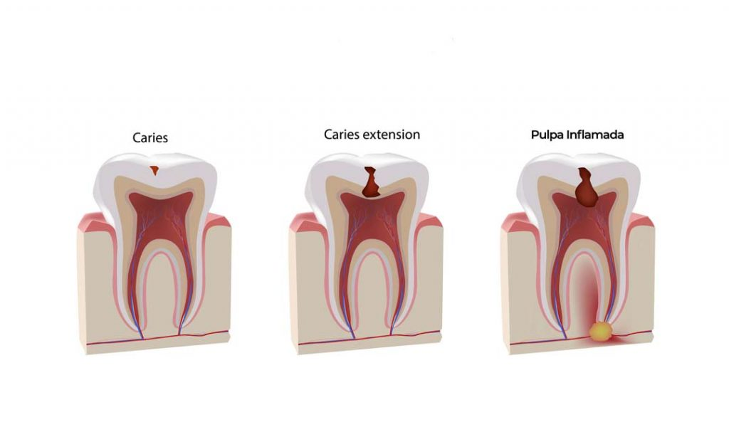 infección dental
